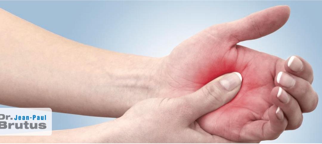 Remède - Qu'est-ce que les rhumatismes et à quoi sert-elle?    Acide hyaluronique gélules